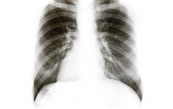 fair payout for Raynaud's Disease claims