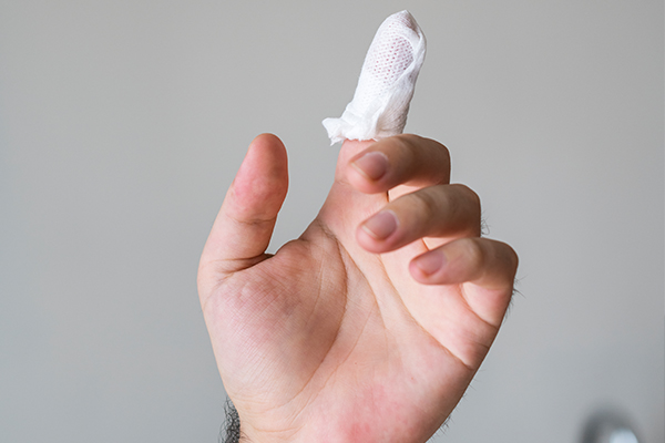 hand injury compensation claims
