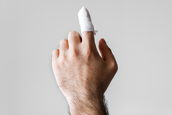 finger injury compensation claims