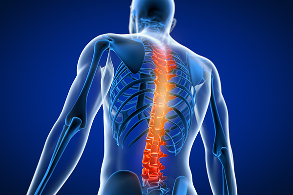 herniated disc compensation claims