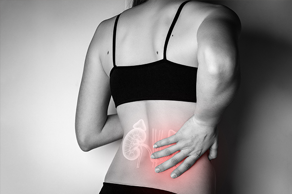 Kidney injury compensation claims