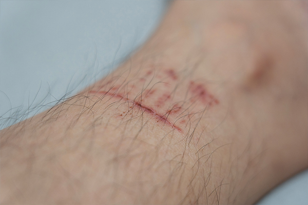laceration injury compensation claims