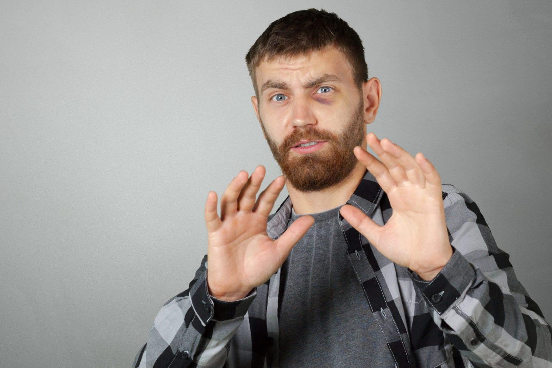 black eye injury compensation claims