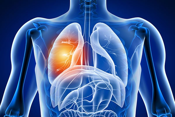 pleural thickening compensation claims
