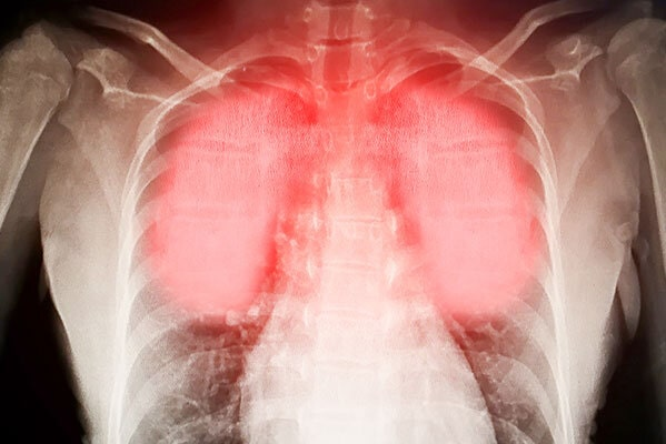 respiratory-idsease-compensation-claims
