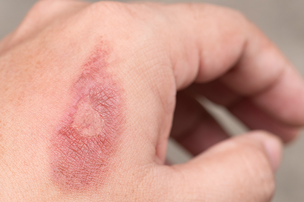 Scarring Compensation Claims