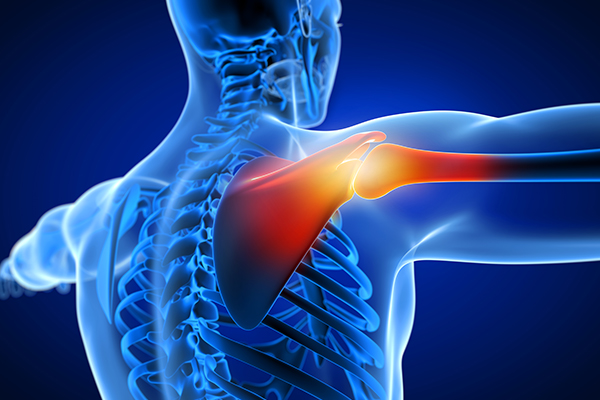 broken shoulder injury compensation claims