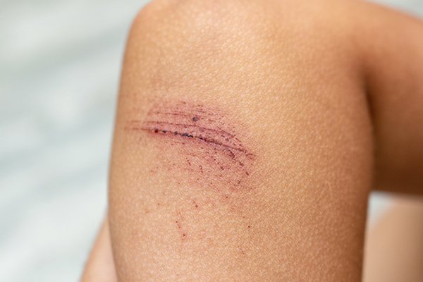 skin abrasion compensation claims