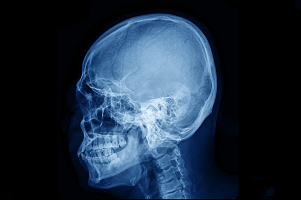 skull fracture compensation claims