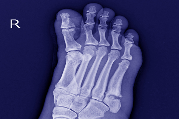 toe injury compensation claims