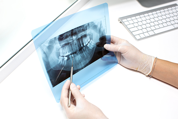 teeth injury compensation claims